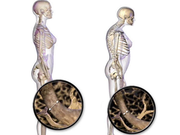 img_am_antenor_mazzuia_osteoporose_02